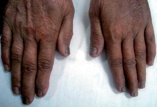Figure 1 :Nails of both hands pigmented more deeply than the toenails.