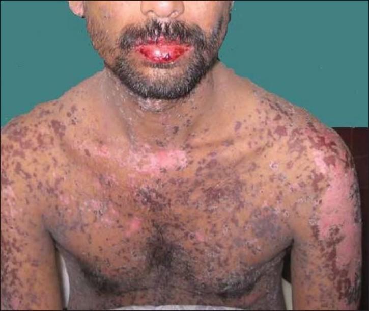 Trimethoprim-sulfamethoxazole-induced Steven Johnson ...