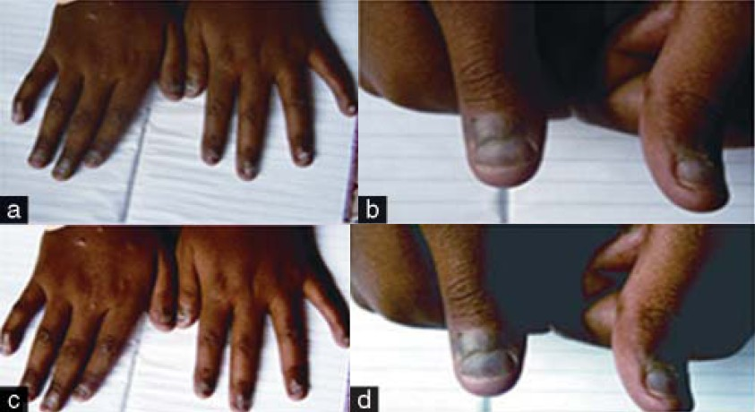 Zidovudine Induced Nail Pigmentation In A 12 Year Old Boy