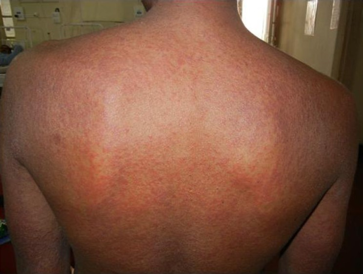 Figure 1: Diffuse erythematous maculopapular rash over back (permission taken from patient)