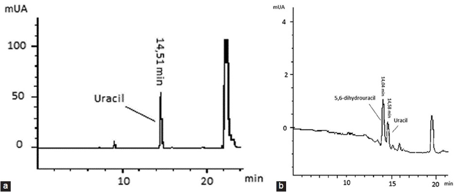 Figure 1: (a) chromatogram obtained from the plasma extract of the patient's mother :undetectable UH2 was observed and a very high accumulation of U was detected suggesting that the subject was profoundly DPD deficient (direct ultraviolet detection at 205 nm) (b) chromatogram obtained from the plasma extract of the patient's father. The two metabolites were detected (direct ultraviolet detection at 205 nm). The UH2 peak was higher than the U peak suggesting a normal UH2/U plasmatic ratio