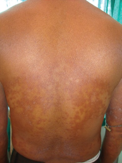 Figure 2: After 1 week of treatment
