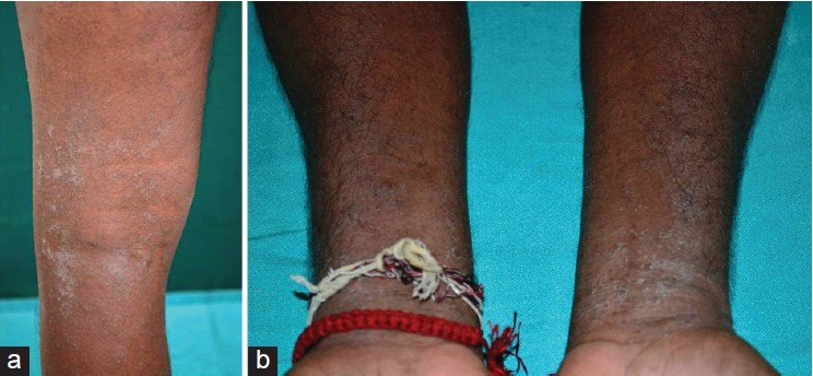 Figure 2: Involvement of (a) lower limbs and (b) both forearms