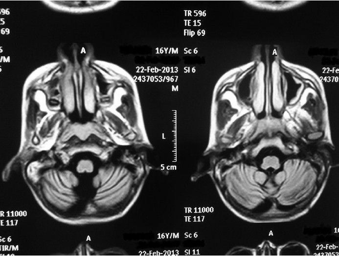 Figure 1: Axial T1 image of brain showing bilateral cerebellar atrophy in an epileptic boy on phenytoin