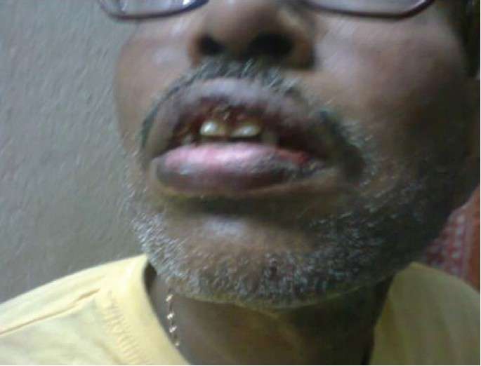 Figure 1: Hemorrhagic encrustation on both lips
