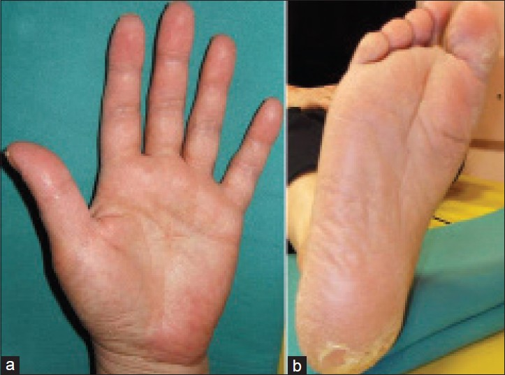 Figure 1: (a and b) Palmoplantar erythema, desquamation and fissuring