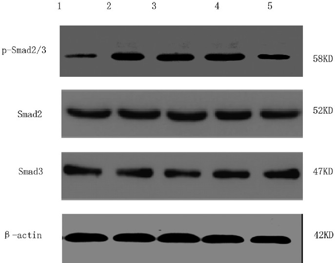 Figure 3: The expression of p-Smad2/3 in cardiac fibroblasts with different treatments determined using Western blot 1, Control; 2, 5 ng/mL transforming growth factor beta 1 (TGFβ1) stimulation for 120 min; 3, 10<sup>−6</sup> mol/L tanshinone (TSN) pretreatment + 5 ng/mL TGFβ1 stimulation; 4, 10<sup>−5</sup> mol/L TSN pretreatment + 5 ng/mL TGFβ1 stimulation; 5, 10<sup>−4</sup> mol/L TSN pretreatment + 5 ng/mL TGFβ1 stimulation