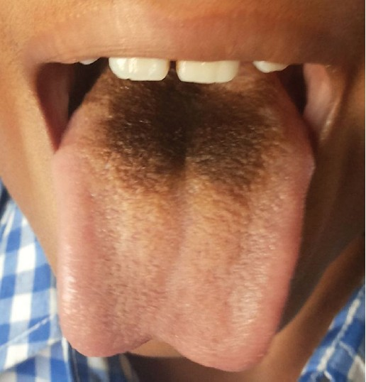 Figure 1: Black hairy tongue in a ten year old boy on linezolid