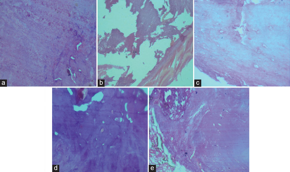 Figure 1: Histopathology of femur bone. (a) Sham-operated control, (b) ovariectomy control, (c) ovariectomy control rats treated with Calcium Sandoz (d) ovariectomy control rats treated with Maxcal-C (250 mg/kg, p.o.), and (e) ovariectomy control rats treated with Maxcal-C (500 mg/kg, p.o.)