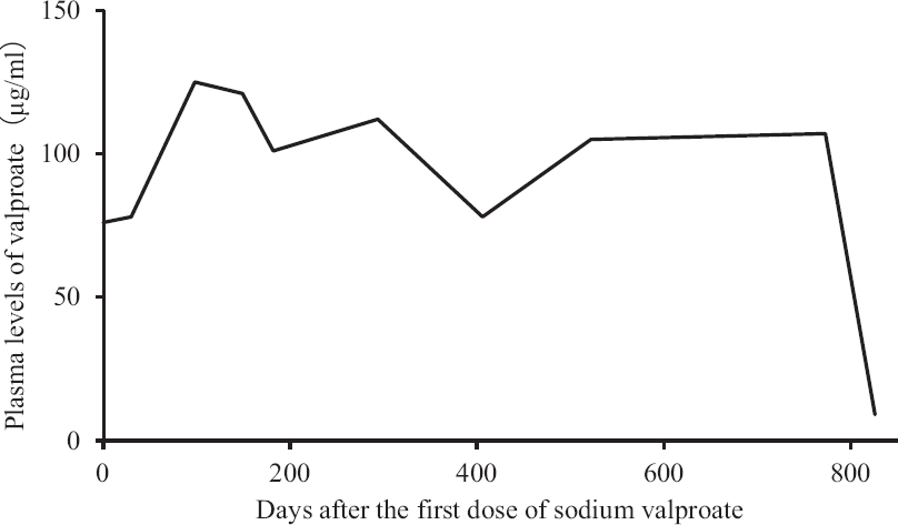 Figure 1: Time course of the plasma valproate levels in case 1