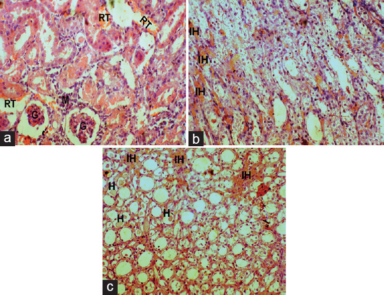 Figure 5: Effect of DC on Kidney histopathology of gentamicin-intoxicated rats in DC200 group (x45): A, B-cortex showing moderate glomerular atrophy (g), renal tubular desquamation (rt), and mononuclear cells infiltration (m); C-medulla showing mild intertubular hemorrhage (ih) with hyaline casts (h)