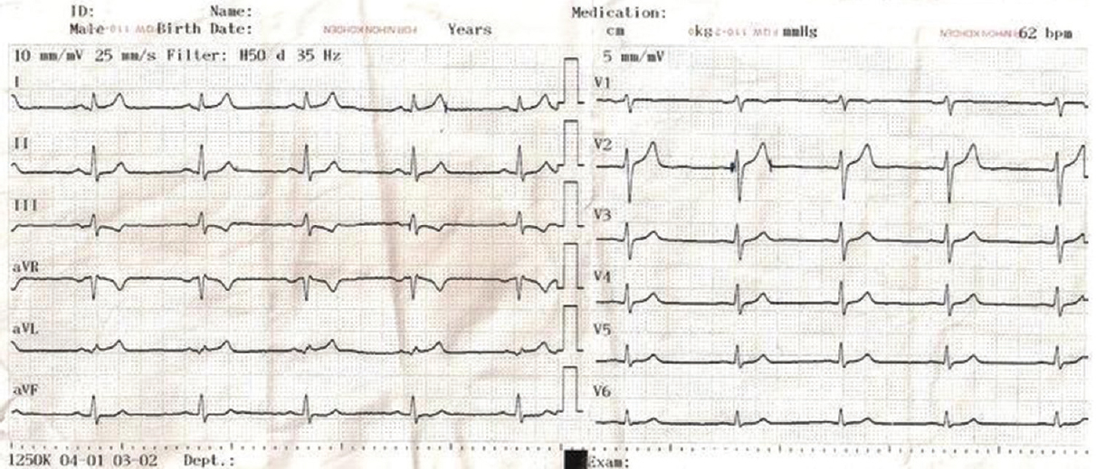 Figure 1: ST Depression in inferior leads and isolated ST elevation In D1-aVL