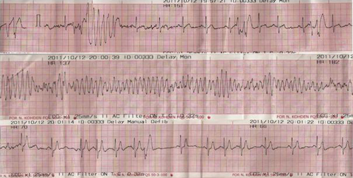 Figure 2: Follow-up electrocardiography showing polymorphic ventricular tachycardia, ventricular fibrillation, and sinus rhythm