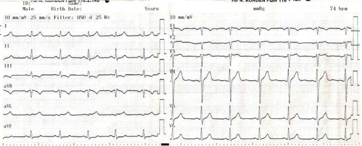 Figure 3: Upper-rib electrocardiography consistent with Brugada syndrome Type 3
