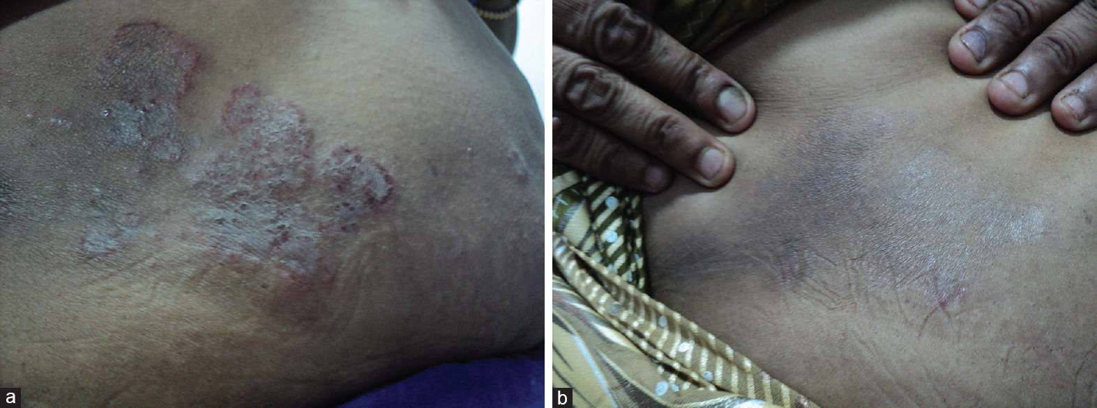 "Figure 1: (a) A case of tinea corporis (abdominal skin). (b) ""Complete clinical cure"" after 2 weeks of topical antifungal therapy"