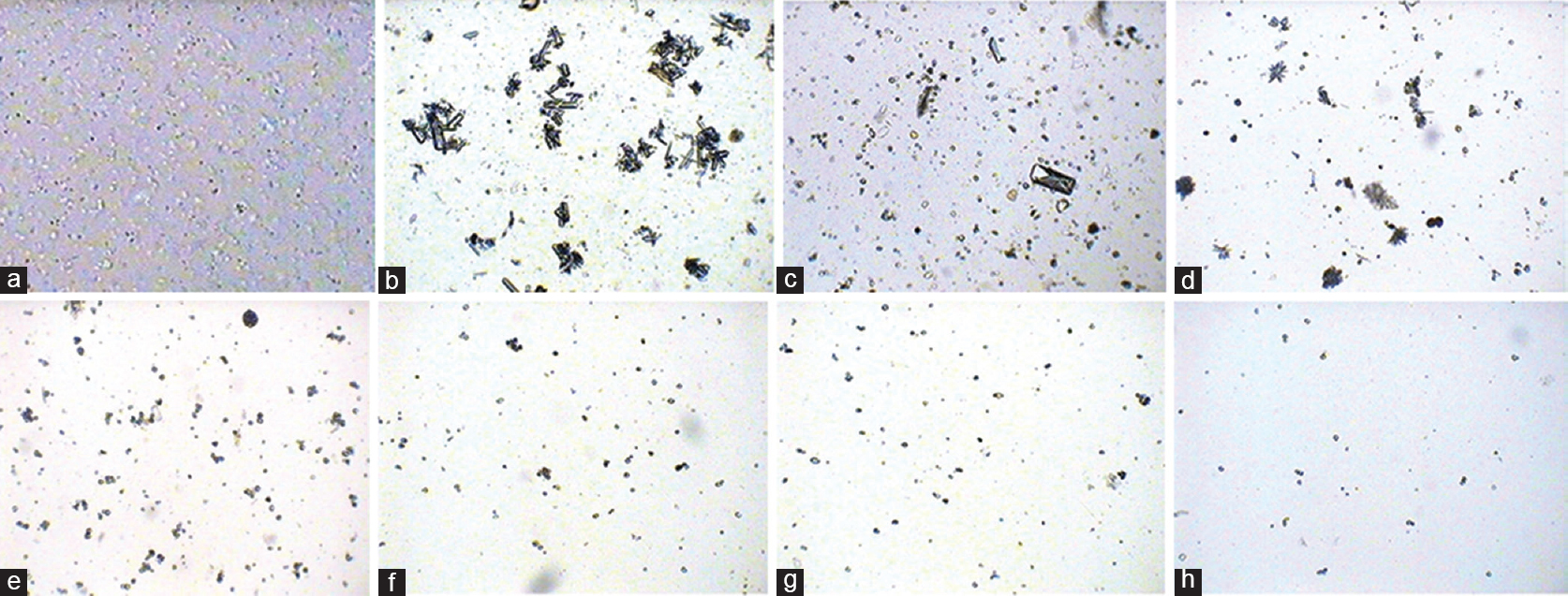 Figure 1: Effect of <i>Musa paradisiaca</i> pseudostem and standard treatment on microscopic picture of urine in rats (×100). (a) Untreated healthy control, (b) lithiatic control, (c) rat treated with <i>Musa paradisiaca</i> pseudostem at 100 mg/kg, (d) rat treated with <i>Musa paradisiaca</i> pseudostem at 150 mg/kg, (e) rat treated with <i>Musa paradisiaca</i> pseudostem at 200 mg/kg, (f) rat treated with <i>Musa paradisiaca</i> pseudostem at 250 mg/kg, (g) rat treated with <i>Musa paradisiaca</i> pseudostem at 300 mg/kg, (h) rat treated with cystone at 100 mg/kg body weight