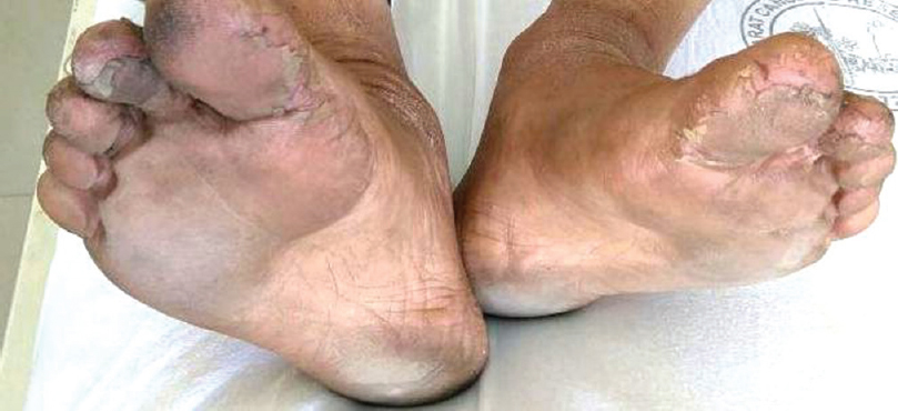 Figure 3: Bilateral feet showing erythema with desquamation