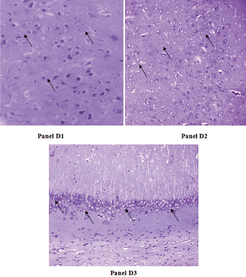 Figure 12: Panel D1 (basal ganglia), panel D2 (cortex) and panel D3 (hippocampus): photomicrographs of H and E-stained brain sections of solanesol 60 mg/kg p.o. treated rats