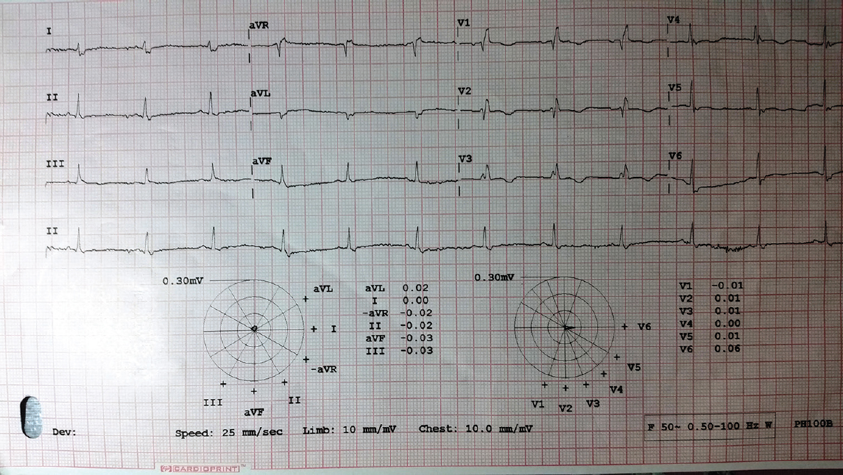 Figure 1: Electrocardiogram at the time of admission
