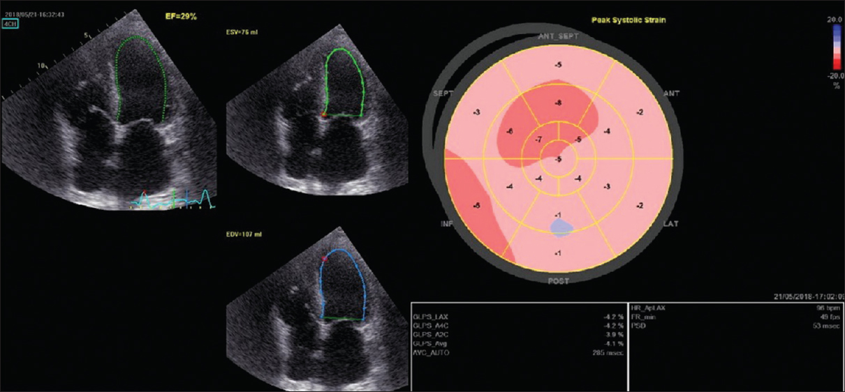 Figure 1: Echocardiography examination showing ejection fraction and global longitudinal strain before sacubitril/valsartan introduction