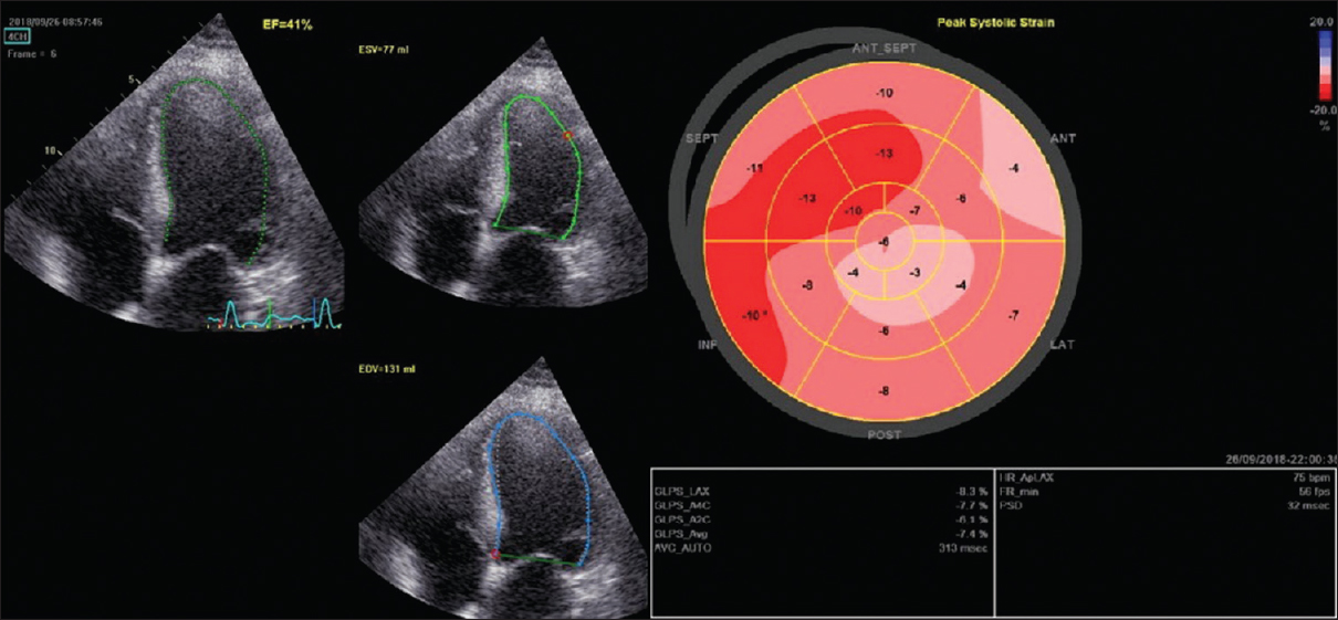 Figure 2: Echocardiography examination showing ejection fraction and global longitudinal strain 3 months after sacubitril/valsartan introduction